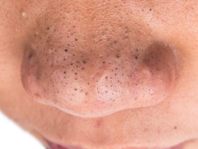 Poren Auf Der Nase Entfernen